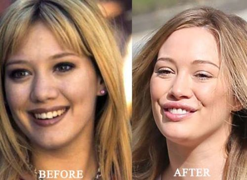 hilary-duff-plastic-surgery-before-after