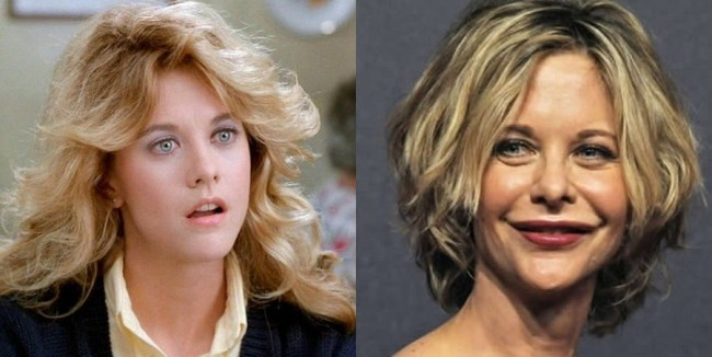 meg-ryan-before-and-after-plastic-surgery-1