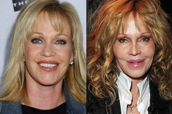 melanie-griffith-before-and-after-plastic-surgery-02