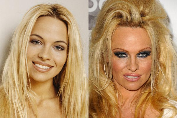 pamela-anderson-plastic-surgery-before-after